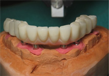 implant plastic bridge